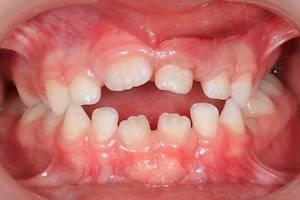 krivie zubi